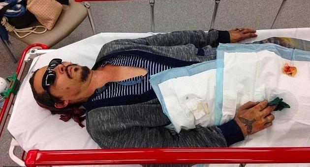 Νέες κατηγορίες του Τζόνι Ντεπ κατά της Άμπερ Χέρντ: «Έσβησε αναμμένο τσιγάρο στο πρόσωπο μου»
