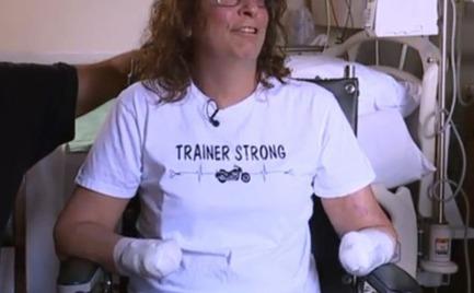Την έγλειψε ο σκύλος της και οι γιατροί αναγκάστηκαν να της κόψουν τα χέρια και τα πόδια της
